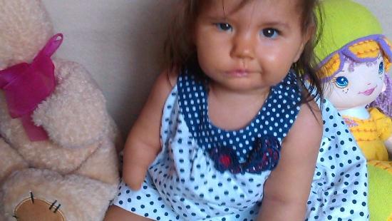 Martynka urodziła się bez rączki i nóżki. Pomóżmy Fundacji Czas Nadziei w zakupie protez